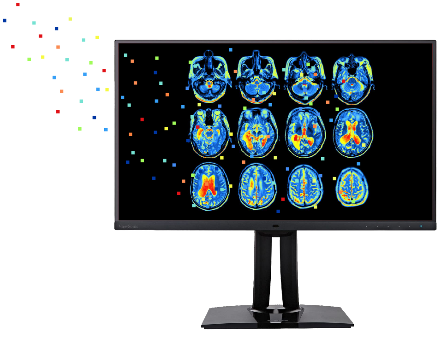 Brain scans, showing glucose levels, that help researchers diagnose degenerative diseases with artificial intelligence